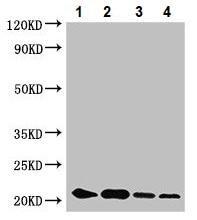 Western blot - Anti-ZNF673 antibody (ab236997)