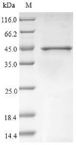 SDS-PAGE - Recombinant BETVIII protein (Tagged) (ab237005)