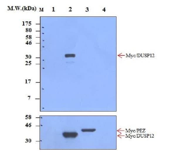 Western blot - Anti-DUSP12 antibody [28F3] (ab237008)