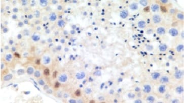 Immunohistochemistry (Formalin/PFA-fixed paraffin-embedded sections) - Anti-TOX1 antibody [NAN448B] (ab237009)
