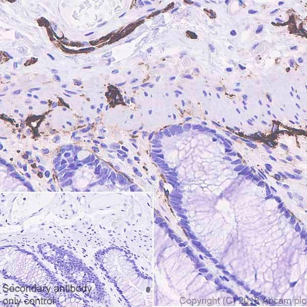Immunohistochemistry (Formalin/PFA-fixed paraffin-embedded sections) - Anti-Podoplanin / gp36 antibody [EPR22182] - BSA and Azide free (ab237033)