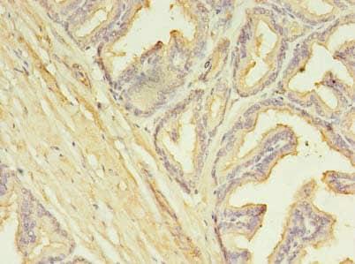 Immunohistochemistry (Formalin/PFA-fixed paraffin-embedded sections) - Anti-SLC25A25/APC3 antibody (ab237051)