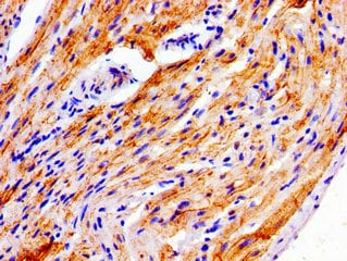 Immunohistochemistry (Formalin/PFA-fixed paraffin-embedded sections) - Anti-NDRG4 antibody (ab237052)
