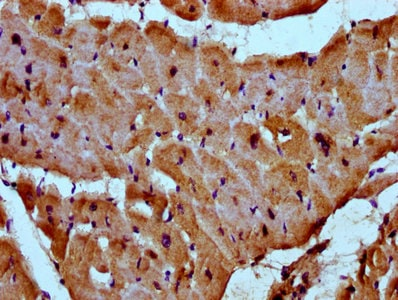 Immunohistochemistry (Formalin/PFA-fixed paraffin-embedded sections) - Anti-Myozenin 2 antibody (ab237053)