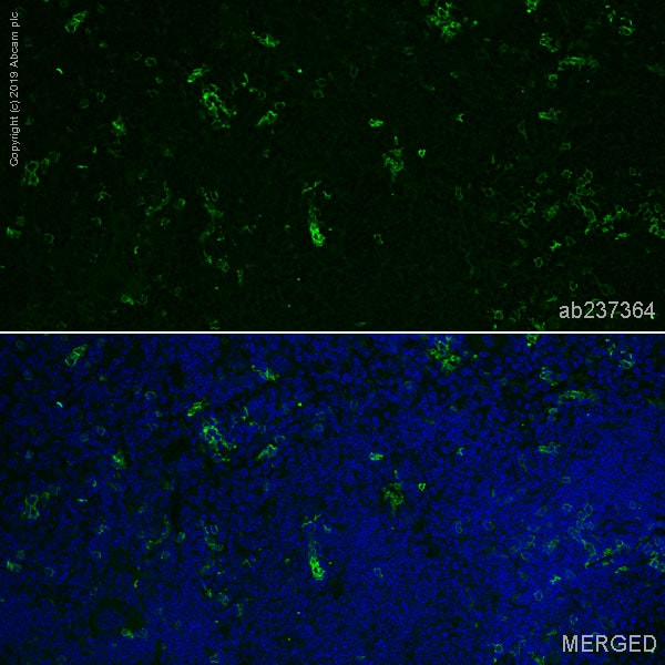 Immunohistochemistry (Formalin/PFA-fixed paraffin-embedded sections) - Anti-CD8 alpha antibody [EPR21769] (Alexa Fluor® 488) (ab237364)
