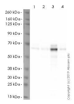 Western blot - Anti-S6K1 antibody [E343] (HRP) (ab237428)