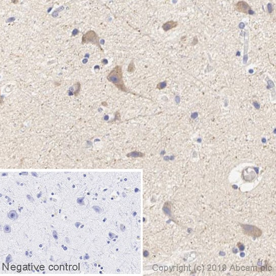 Immunohistochemistry (Formalin/PFA-fixed paraffin-embedded sections) - Anti-Tryptophan Hydroxylase/TPH antibody [EP1311Y] (HRP) (ab237450)