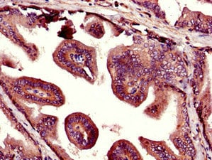 Immunohistochemistry (Formalin/PFA-fixed paraffin-embedded sections) - Anti-KIST/KIS antibody (ab237501)