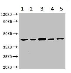 Western blot - Anti-PCID1 antibody (ab237504)