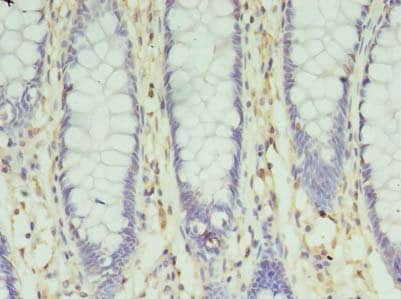 Immunohistochemistry (Formalin/PFA-fixed paraffin-embedded sections) - Anti-SLC35F5 antibody (ab237506)