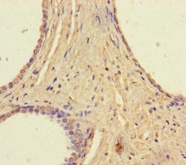 Immunohistochemistry (Formalin/PFA-fixed paraffin-embedded sections) - Anti-RAVER2 antibody (ab237507)