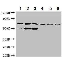 Western blot - Anti-TCTN3 antibody (ab237512)
