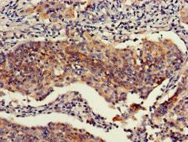 Immunohistochemistry (Formalin/PFA-fixed paraffin-embedded sections) - Anti-Retinoblastoma binding protein 6 antibody (ab237514)