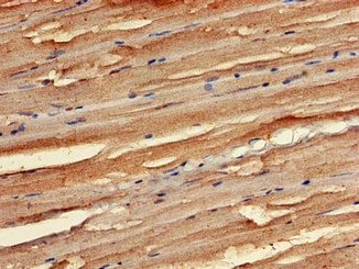 Immunohistochemistry (Formalin/PFA-fixed paraffin-embedded sections) - Anti-STK35 antibody (ab237517)
