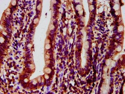 Immunohistochemistry (Formalin/PFA-fixed paraffin-embedded sections) - Anti-HYPE antibody (ab237521)