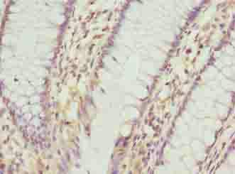 Immunohistochemistry (Formalin/PFA-fixed paraffin-embedded sections) - Anti-C9ORF46/PLGRKT antibody (ab237525)