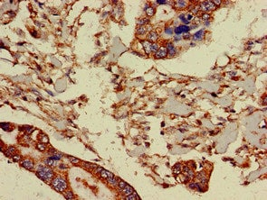 Immunohistochemistry (Formalin/PFA-fixed paraffin-embedded sections) - Anti-PRR11 antibody (ab237526)