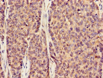 Immunohistochemistry (Formalin/PFA-fixed paraffin-embedded sections) - Anti-SLC20A1 antibody (ab237527)
