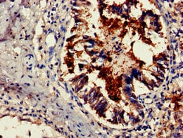 Immunohistochemistry (Formalin/PFA-fixed paraffin-embedded sections) - Anti-TSR2 antibody (ab237531)