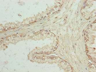 Immunohistochemistry (Formalin/PFA-fixed paraffin-embedded sections) - Anti-SPTLC3 antibody (ab237532)