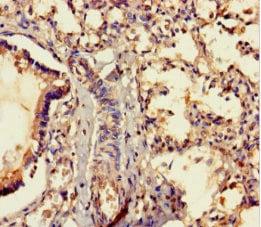 Immunohistochemistry (Formalin/PFA-fixed paraffin-embedded sections) - Anti-MRAP2 antibody (ab237537)