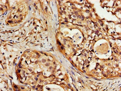Immunohistochemistry (Formalin/PFA-fixed paraffin-embedded sections) - Anti-24p3R antibody (ab237539)