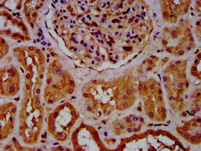 Immunohistochemistry (Formalin/PFA-fixed paraffin-embedded sections) - Anti-CPNE8 antibody (ab237541)