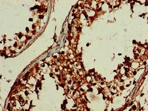 Immunohistochemistry (Formalin/PFA-fixed paraffin-embedded sections) - Anti-DEPDC1B antibody (ab237542)