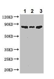 Western blot - Anti-PFKM antibody (ab237545)