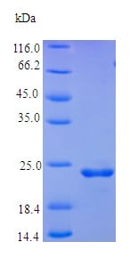 SDS-PAGE - Recombinant human Oncostatin M/OSM protein (Active) (ab237559)
