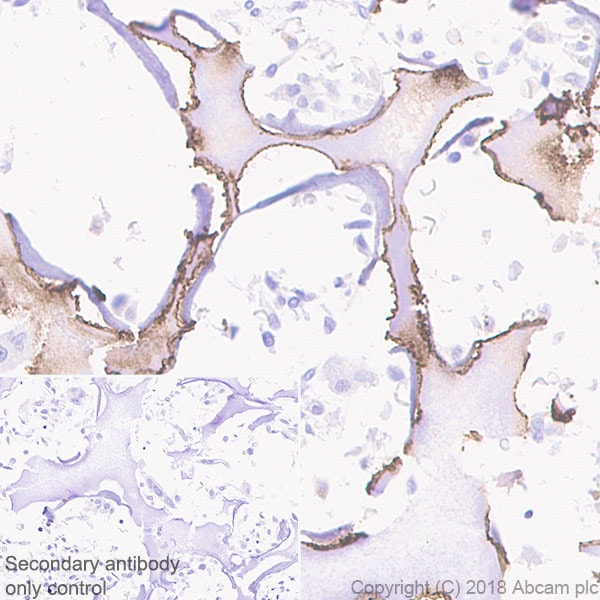 Immunohistochemistry (Formalin/PFA-fixed paraffin-embedded sections) - Anti-MMP13 antibody [EPR21778] - BSA and Azide free (ab237604)