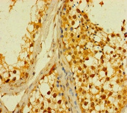 Immunohistochemistry (Formalin/PFA-fixed paraffin-embedded sections) - Anti-PLD6 antibody (ab237612)