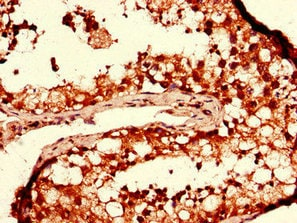 Immunohistochemistry (Formalin/PFA-fixed paraffin-embedded sections) - Anti-DGAT2 antibody (ab237613)