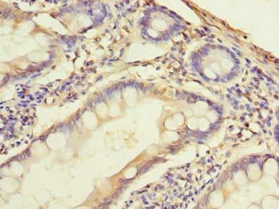 Immunohistochemistry (Formalin/PFA-fixed paraffin-embedded sections) - Anti-SNAT2 antibody (ab237614)