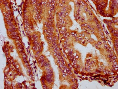 Immunohistochemistry (Formalin/PFA-fixed paraffin-embedded sections) - Anti-GSDMA antibody (ab237615)