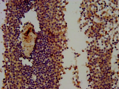 Immunohistochemistry (Formalin/PFA-fixed paraffin-embedded sections) - Anti-Themis antibody (ab237626)