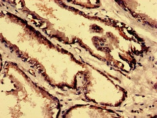 Immunohistochemistry (Formalin/PFA-fixed paraffin-embedded sections) - Anti-CPNE4 antibody (ab237627)