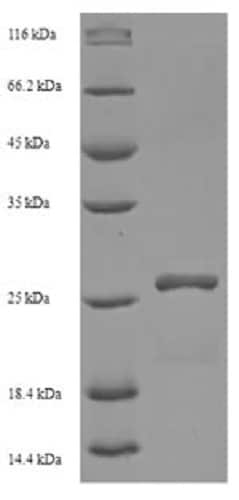 SDS-PAGE - Recombinant Human HLA-DMA protein (His tag) (ab237672)