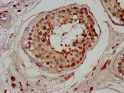 Immunohistochemistry (Formalin/PFA-fixed paraffin-embedded sections) - Anti-CHMP1a antibody (ab237676)