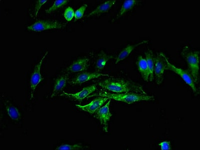Immunocytochemistry/ Immunofluorescence - Anti-Sphingomyelin Synthase 2 antibody (ab237681)