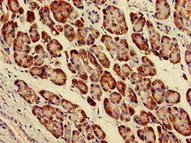 Immunohistochemistry (Formalin/PFA-fixed paraffin-embedded sections) - Anti-PARVA antibody (ab237683)