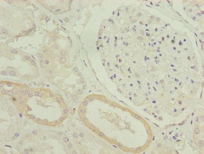 Immunohistochemistry (Formalin/PFA-fixed paraffin-embedded sections) - Anti-DHHC-12 antibody (ab237688)