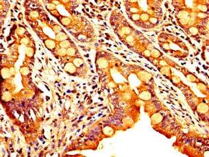 Immunohistochemistry (Formalin/PFA-fixed paraffin-embedded sections) - Anti-SEMAC antibody (ab237690)