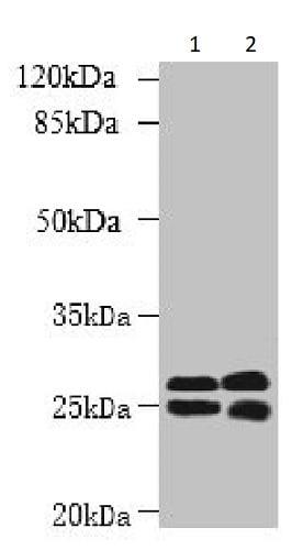 Western blot - Anti-LOC134147/CMBL antibody (ab237694)