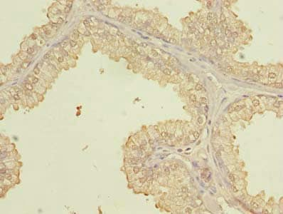 Immunohistochemistry (Formalin/PFA-fixed paraffin-embedded sections) - Anti-PQLC3 antibody (ab237695)