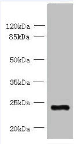 Western blot - Anti-PQLC3 antibody (ab237695)