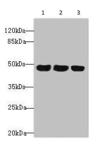 Western blot - Anti-TXNDC5 antibody (ab237697)