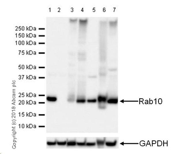 Western blot - Anti-RAB10 antibody [MJF-R23] (ab237703)