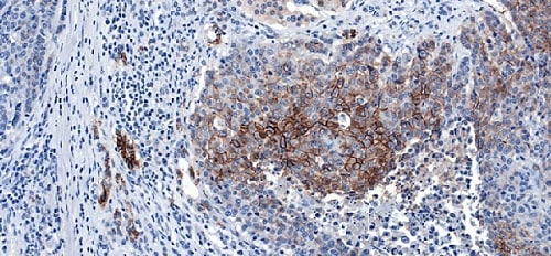 Immunohistochemistry (Formalin/PFA-fixed paraffin-embedded sections) - Anti-NCAM1 antibody [CAL53] (ab237708)