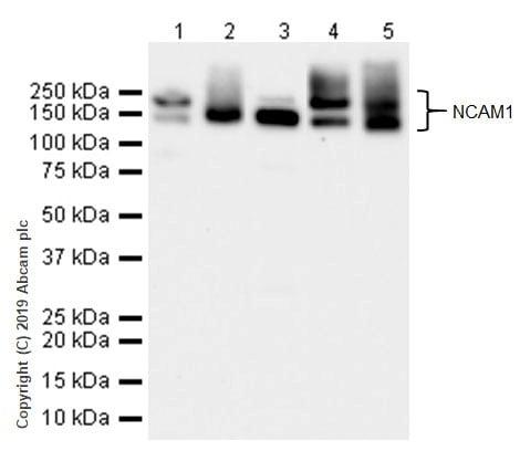 Western blot - Anti-NCAM1 antibody [CAL53] (ab237708)